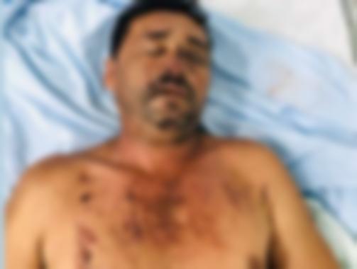 Criminoso dá nome falso em hospital do Piauí após sofrer acidente